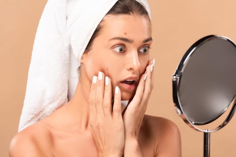 vyberomat cz acne